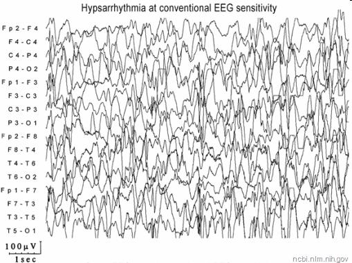 image of an EEG